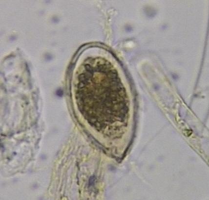 Alga Ostreopsis ovata